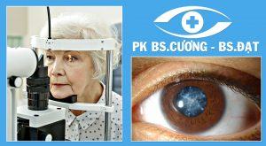 Phòng khám mắt Nam Định